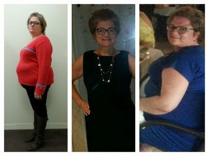 Debbie, Bariatric Patient since 2014