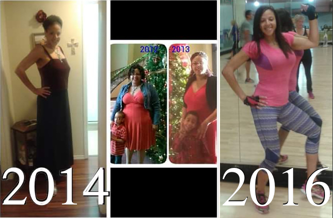 Desiree, Bariatric Patient 2011 to 2016