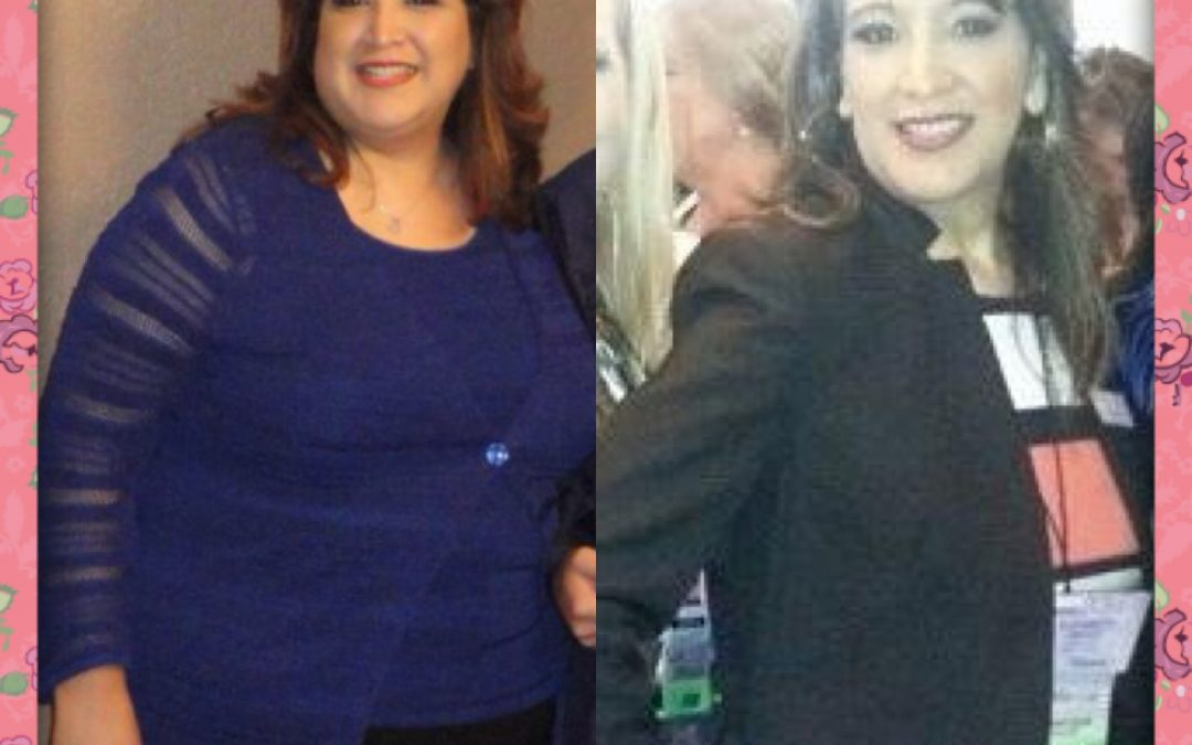 Elizabeth, Bariatric Patient since 2014