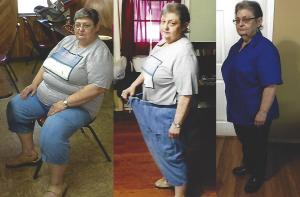 Janice, Bariatric Patient since 2014
