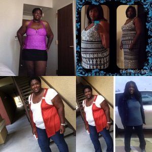 Kristie, Bariatric Patient since 2014