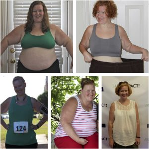 Lynda, Bariatric Patient since 2015